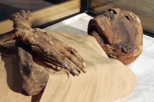Descubren en momias egipcias aterosclerosis