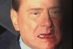 Agreden a Berlusconi y pierde 2 dientes